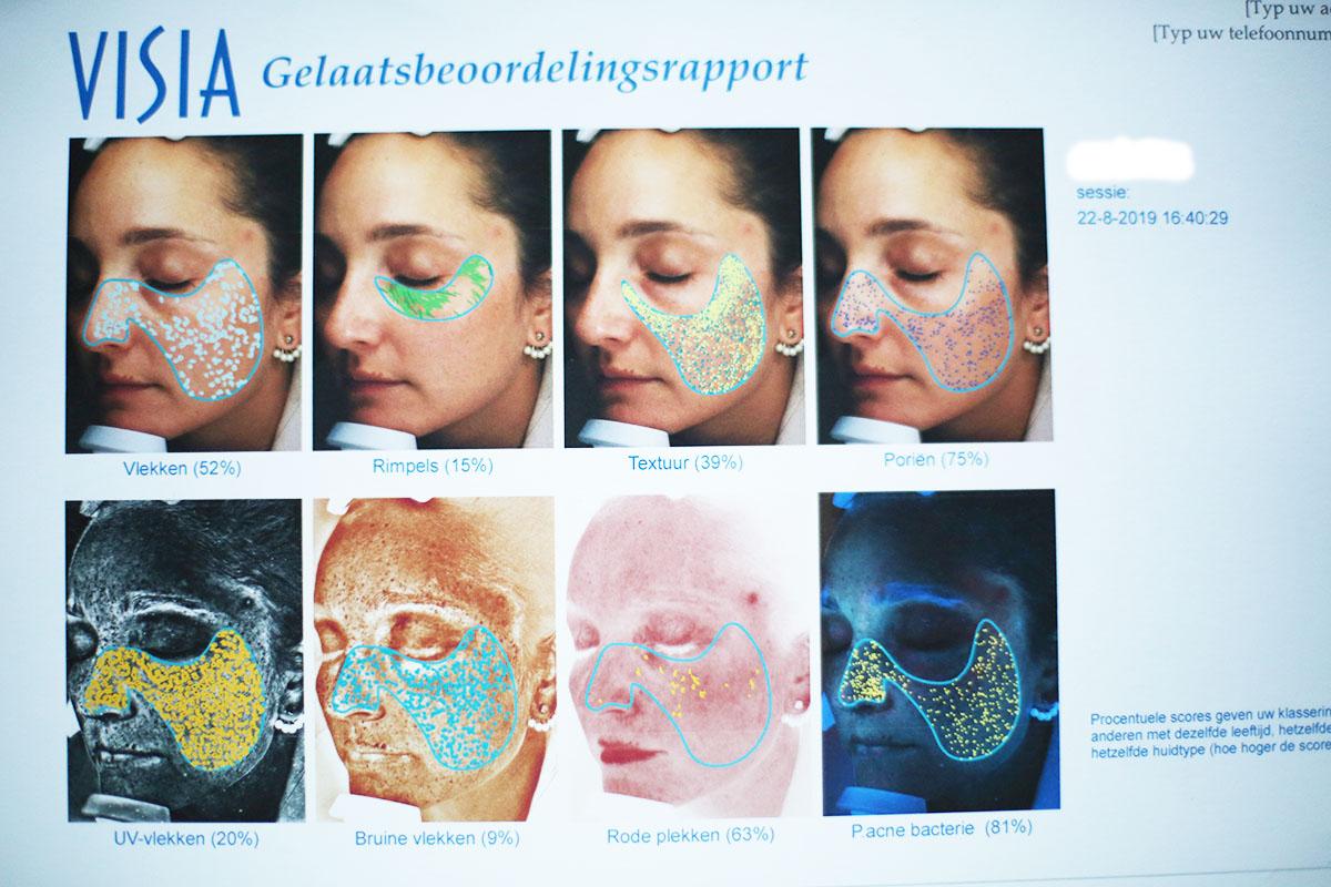 Avec Sofié Blog l Oslo Skin lab kollagen
